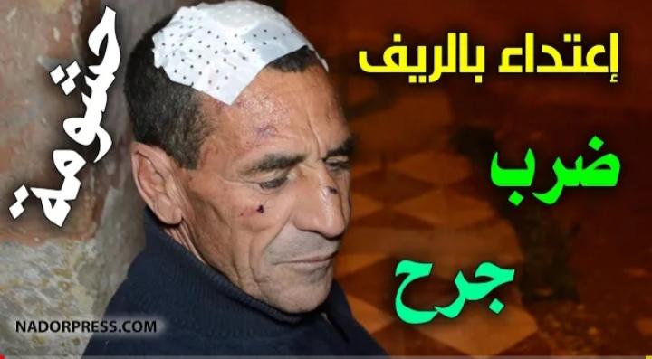 خطير.. مواطن ببن الطيب يتهم عون سلطة سابقا بالاعتداء عليه بالضرب والجرح